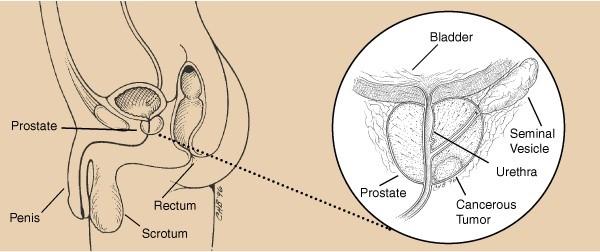 Cancerul de prostata, Foto: wholeninehealth.ca