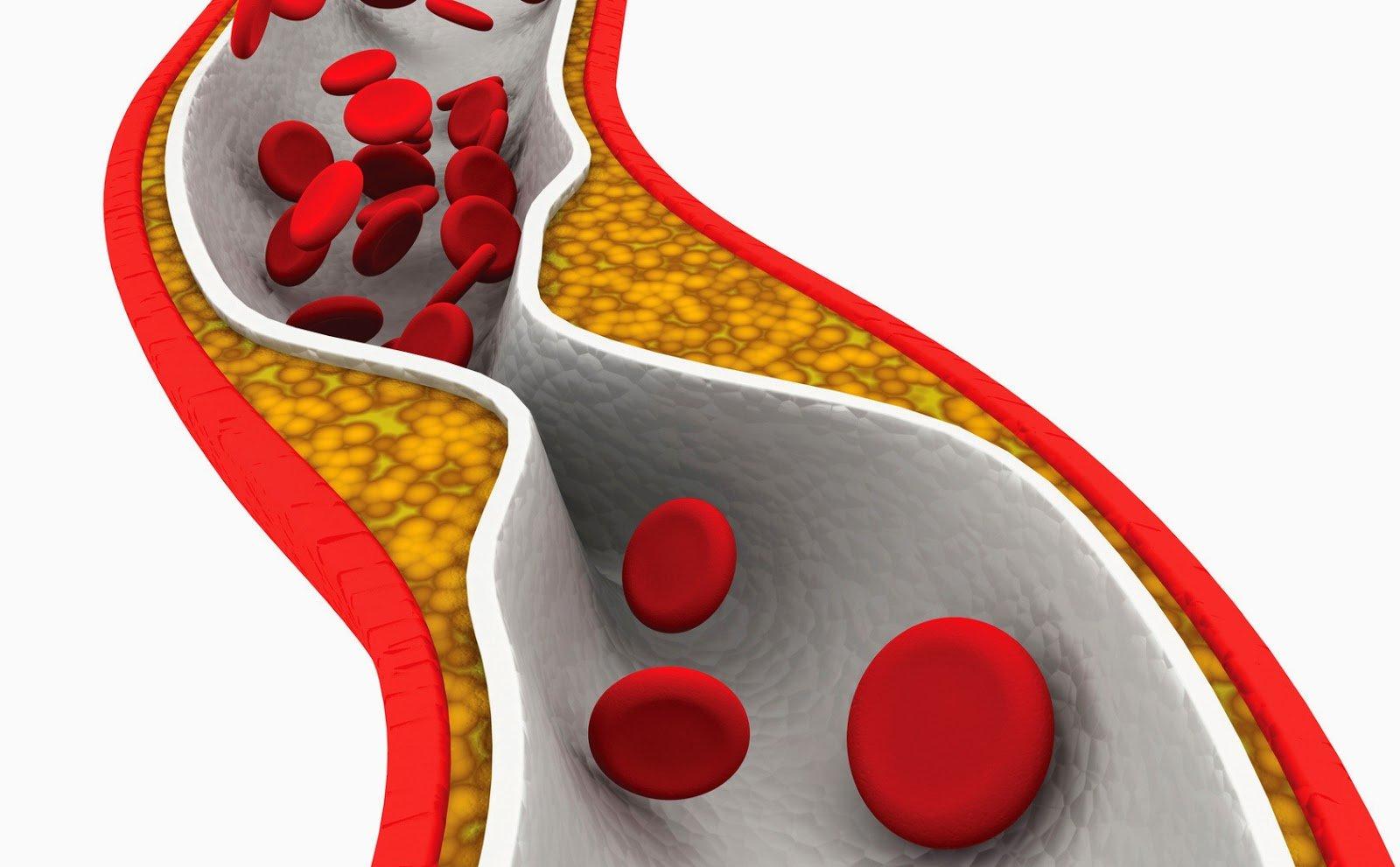 10-nivel-de-colesterol
