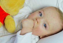 1-pete-rosii-pe-pielea-bebelusilor